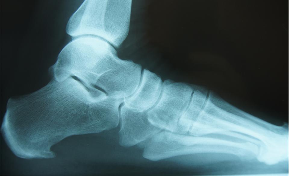 Calcaneal spur (heel/bone spur) – Dr Renu Madan