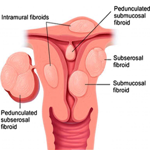 uterine-fibroid