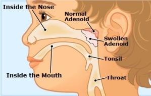 adenoids 1