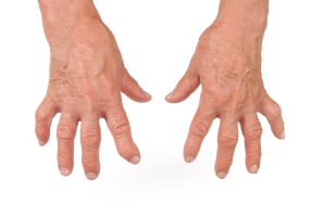 Deformed hands in chronic inflammation due to Rheumatoid Arthritis
