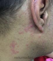 Chikungunya Rash