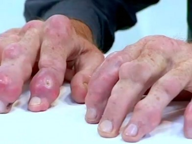 gout and massage therapy all natural gout drugs serum uric acid levels and long-term outcomes in chronic kidney disease