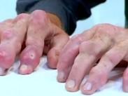 acute-gout