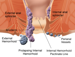 internal_and_external_hemorrhoids