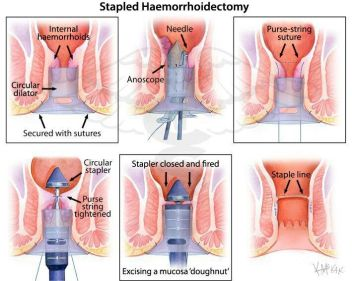 stapled-haemorrhiodectomy