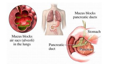 cystic-fibrosis-causes-heavy-mucus-buildup-in-lungs-and-pancreas