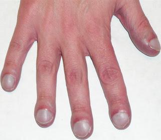 Cystic Fibrosis Dr Renu Madan