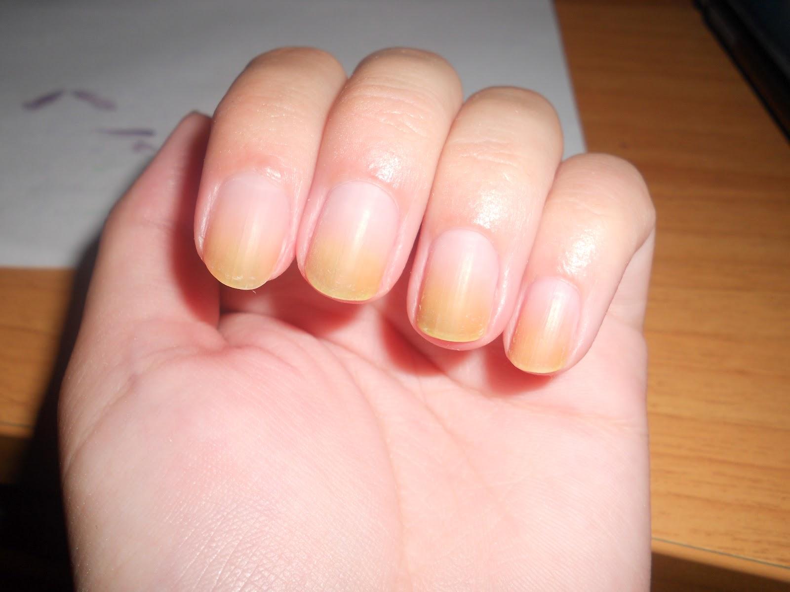 От чего жёлтые ногти на руках