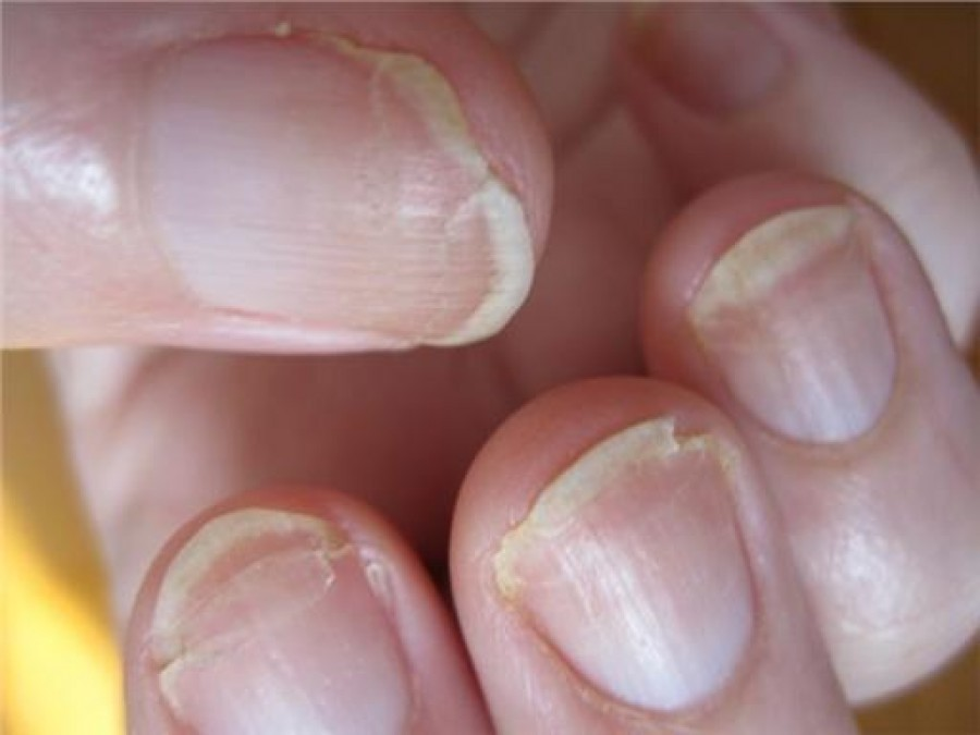 Fungal Infection Of The Nail Dr Renu Madan
