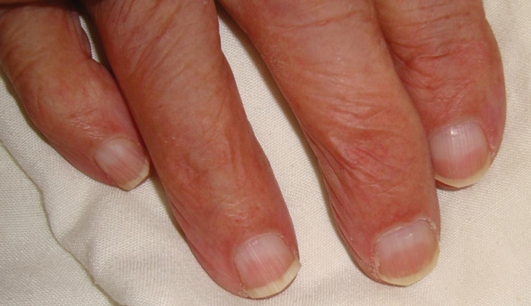 homeopathic medicine for nails – Dr Renu Madan