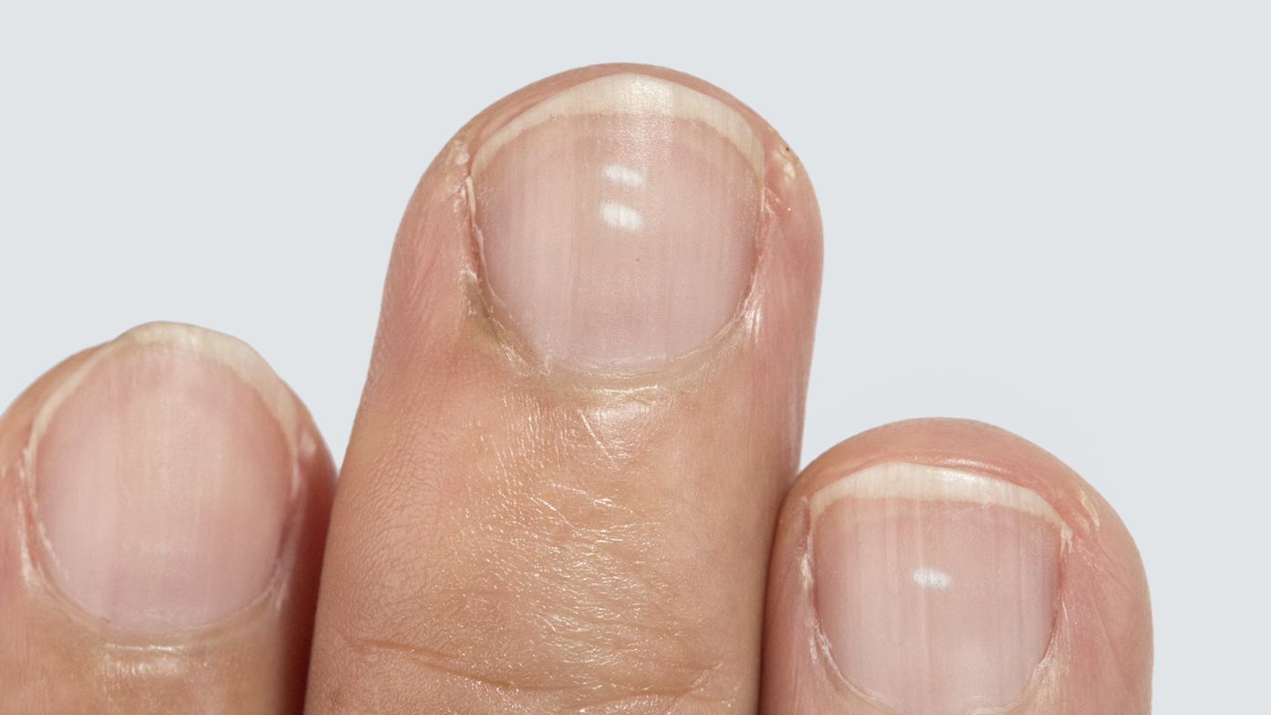 Fungal infection of the nail – Dr Renu Madan