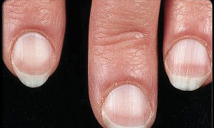 Nail Affections And Their Treatment Dr Renu Madan