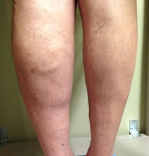 Venous insufficiency - swollen limb
