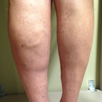 Venous insufficiency - swollen limb