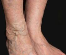 tortuous varicosed veins