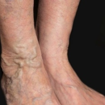 tortuous varicosed veins