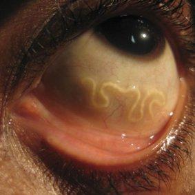 human-hookworm