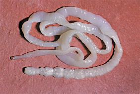 An adult tapeworm