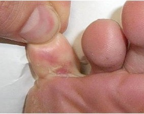 Athletes Foot yeast infection