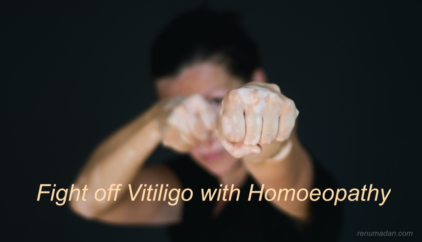 Vitiligo — Don't Hide Your Spots… STOP Them!!