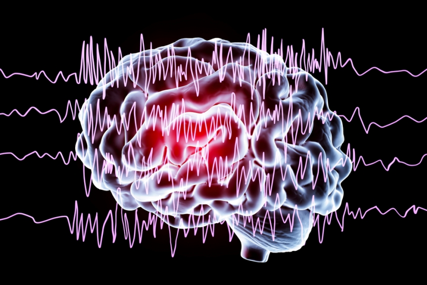 Are you suffering fromSeizures?